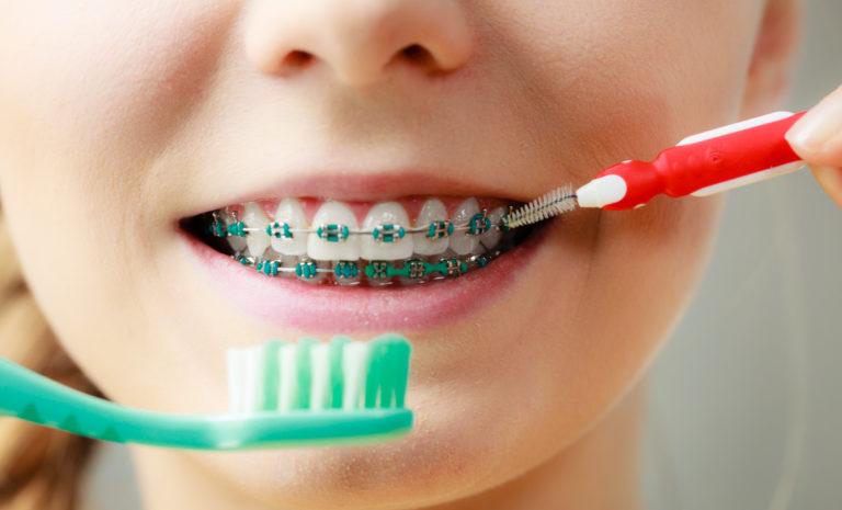 Ortodoncia, manchas blancas y solución